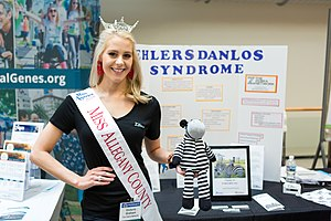 Victoria Graham Ehlers-Danlos Syndrome