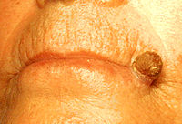 Actinic keratosis on the lip.JPEG