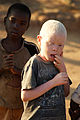 Albino boy by JJ Hoefnagel.JPG
