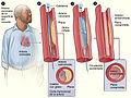 Angioplasty sp 2011.jpg