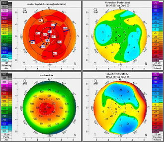 Photorefractive keratectomy - Preliminary investigation of the corneal topography. The test maps a patient's cornea for raised areas and surface inconsistencies.