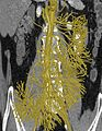 Bowel vasculature - 1.jpg