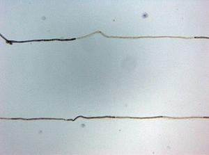 Histopatologia CIDP Teased fibre.jpg