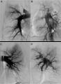 CTEPH pulmonary artery angiogram (PA angiogram).tif