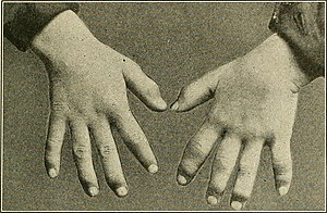 Diseases of children (1916) (14743209206).jpg