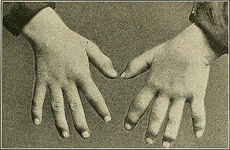 Dactylitis - Syphilitic dactylitis.