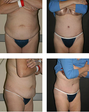 Abdominoplasty - Full abdominoplasty consisting of musculofascial plication abdominal dermal lipectomy, suction-assisted lipectomy of hips.