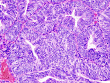 Image of the histology of an endometrial adenocarcinoma, showing many abnormal nuclei