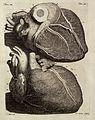 F. Ruysch, Thesaurus anatomicus primus (-dec Wellcome L0031991.jpg