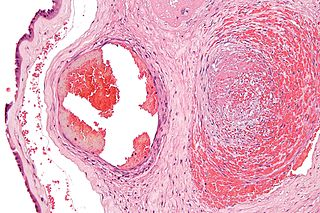 Fibrin fibrous, non-globular protein involved in the clotting of blood.