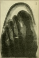 Foot care and shoe fitting-Fig47 Foot in a 1920 US marine corps last Sufficient length but insufficient breadth, hallux valgus.png