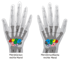 Brechen schmerzen handgelenk ohne Arm Brechen