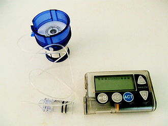 Infusion set - An insulin pump and infusion set. The infusion set is shown loaded into a spring-loaded insertion device (the blue object). A reservoir of insulin is shown attached to the set, awaiting insertion into the pump.
