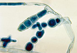 Macroconidia of the dermatophytic fungus Epidermophyton floccosum PHIL 4207 lores.jpg