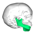 Mandible lateral2.png