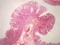 Mixed histology polyp.png