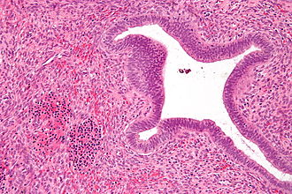 Extramedullary hematopoiesis - Micrograph showing nucleated red blood cells (bottom left of image), one of the elements necessary to call extramedullary hematopoiesis, in an endometrial polyp. H&E stain.