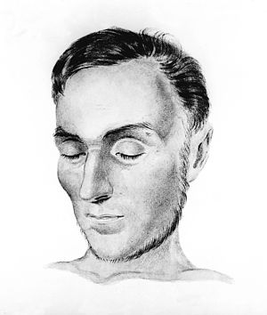 Patient with Addison's disease