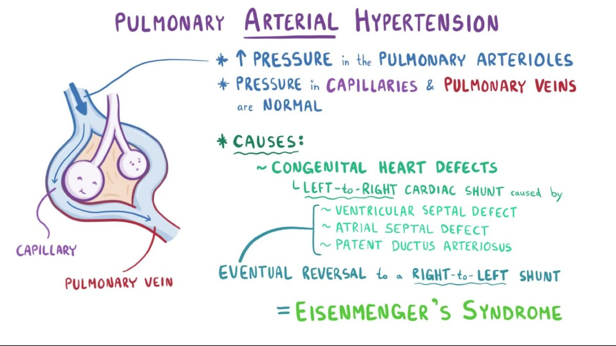 Pulmonary hypertension wikipedia nvjuhfo Choice Image