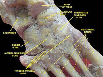 Deltoid ligament - Image: Slide 6CEC5