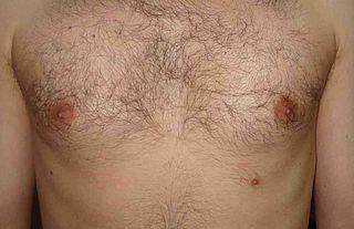 Thumb Size Nipples 69