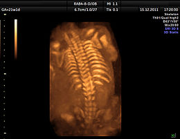 Ultrasound of fetal spine at 20 weeks 3D Dr. Moroder.jpg