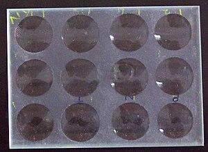 VDRL slide used in VDRL test