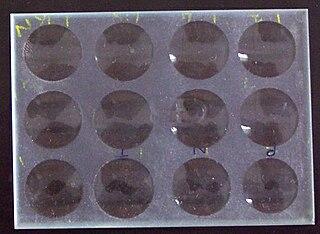 Venereal Disease Research Laboratory test