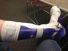 Orthopedic Diabetic Shoes Uk