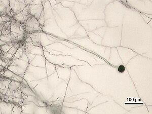 Aspergillus niger - Image: Aspergillus niger Micrograph