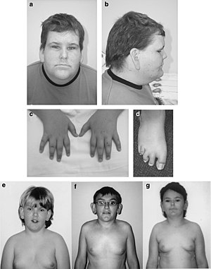 Borjeson Forssman Lehmann Syndrome Wikipedia