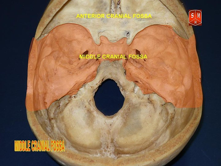 Middle Cranial Fossa Eanswers