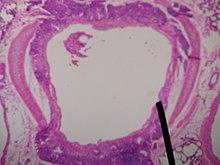 Sezione di un bronco al microscopio ottico