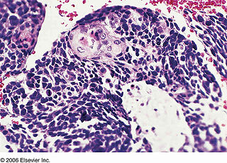 Combined small-cell lung carcinoma