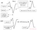 De-Rhythm LBTBmorph nl (CardioNetworks ECGpedia).png