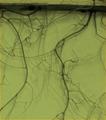 Ericaceenwurzeln.tif