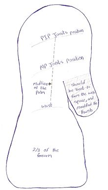 Upper Limb Orthotics Burns Injury On The Dorsal Surface Of