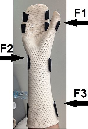 Three point force system to produce ulnar deviation of the wrist.