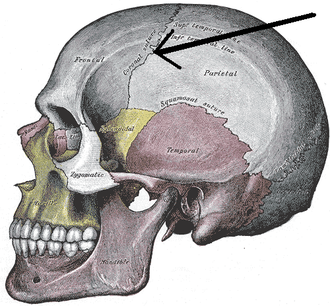 Stephanion - Side view of the skull. (Stephanion visible at center top, but not labeled. Coronal suture is at tip of arrow, and stephanion is slightly above it.)