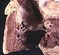Heart - cor pulmonale- right ventricular hypertrophy (4351163511).jpg