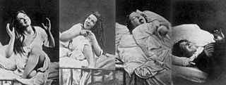 Female hysteria outdated diagnosis and treatment for patiences with multiple symptoms of a neurological condition