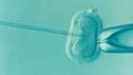 ICSI intracytoplasmic sperm injection.png