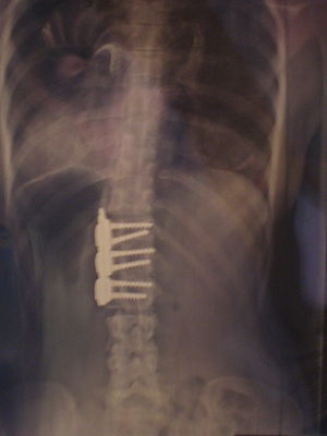 X-ray of spine after scoliosis surgery - anter...