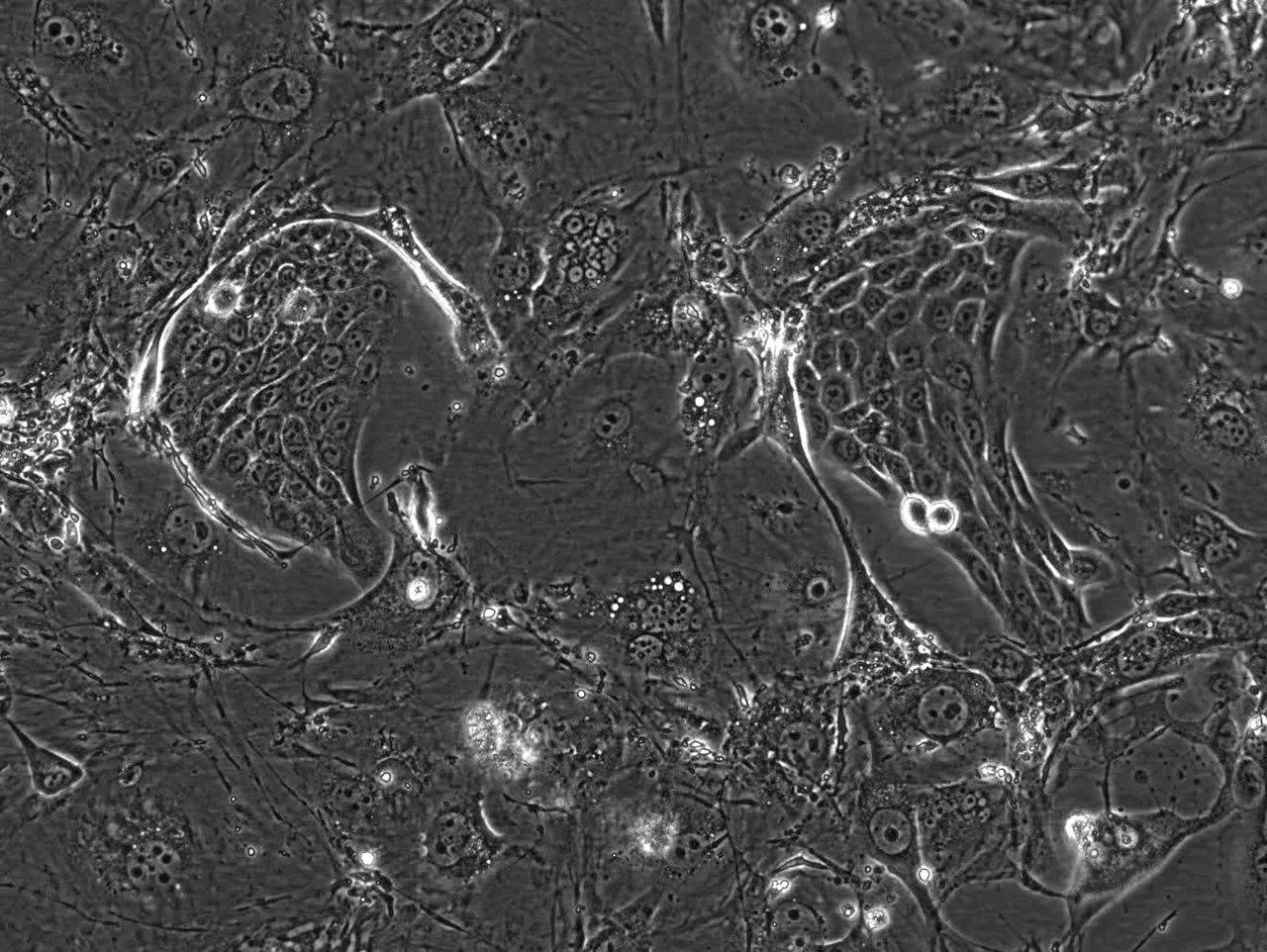 File Keratinocytes