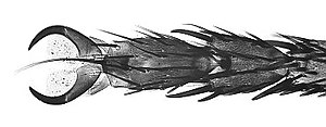 Arthropod leg -  Micrograph of Housefly leg