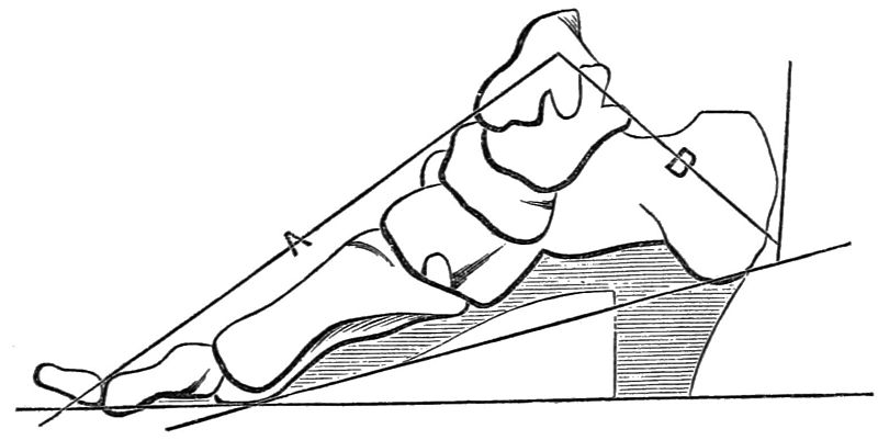File:PSM V24 D675 Offset bone structure interferes with proper foot function.jpg