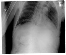 Pneumoperitoneum Chest X-ray
