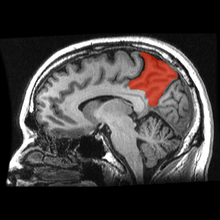 Sagittal MRI slice with the precuneus shown in red.