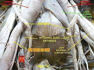 External iliac artery - Image: Right external artery