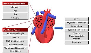 Atrial Fibrillation Concept Map.Atrial Fibrillation Wikipedia